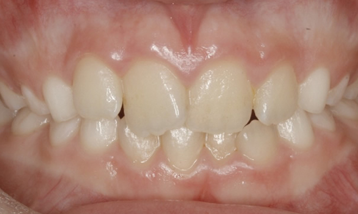 8 Braces For Crowded Teeth No Teeth Extracted Platinum Orthodontics