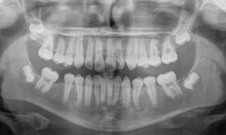 11 Removal Of The 4 Compromised First Molars Platinum